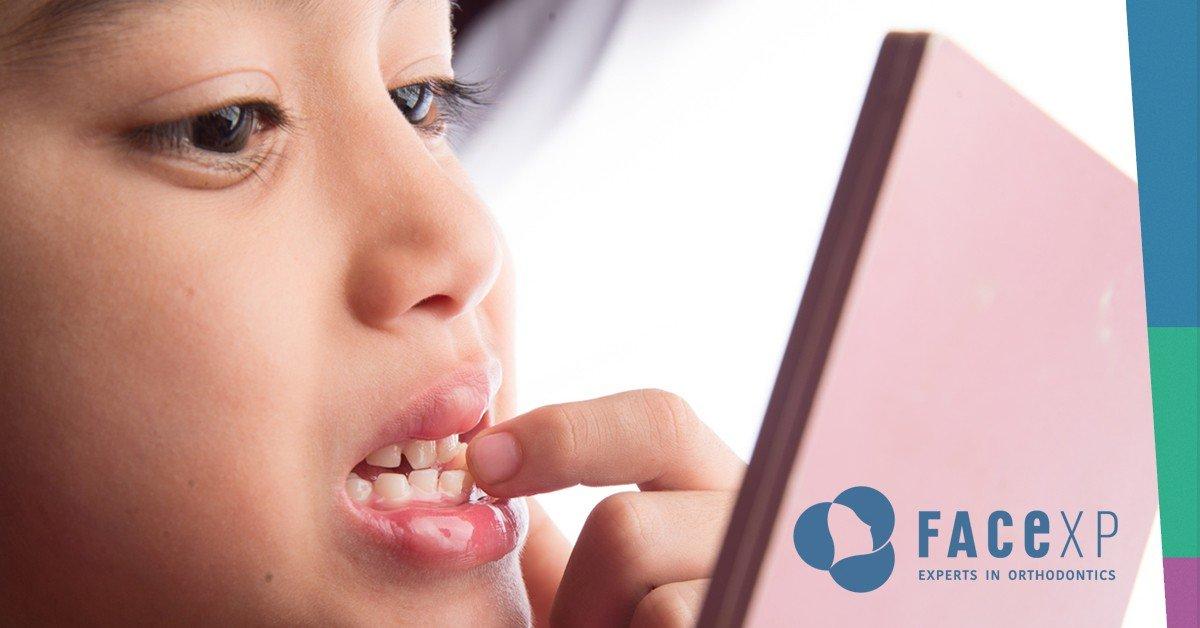 Affollamento dentale, un problema di spazio disponibile...