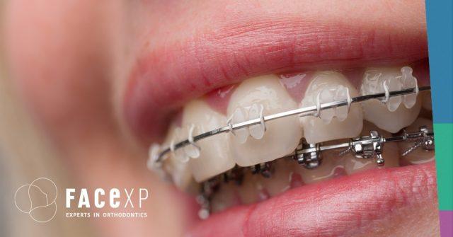 Apparecchi ortodontici fissi