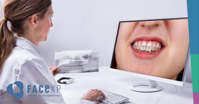 COVID-19 urgenze ortodontiche