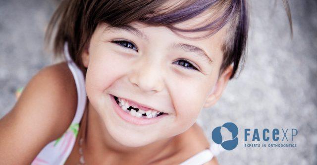 Morso inverso dei denti anteriori