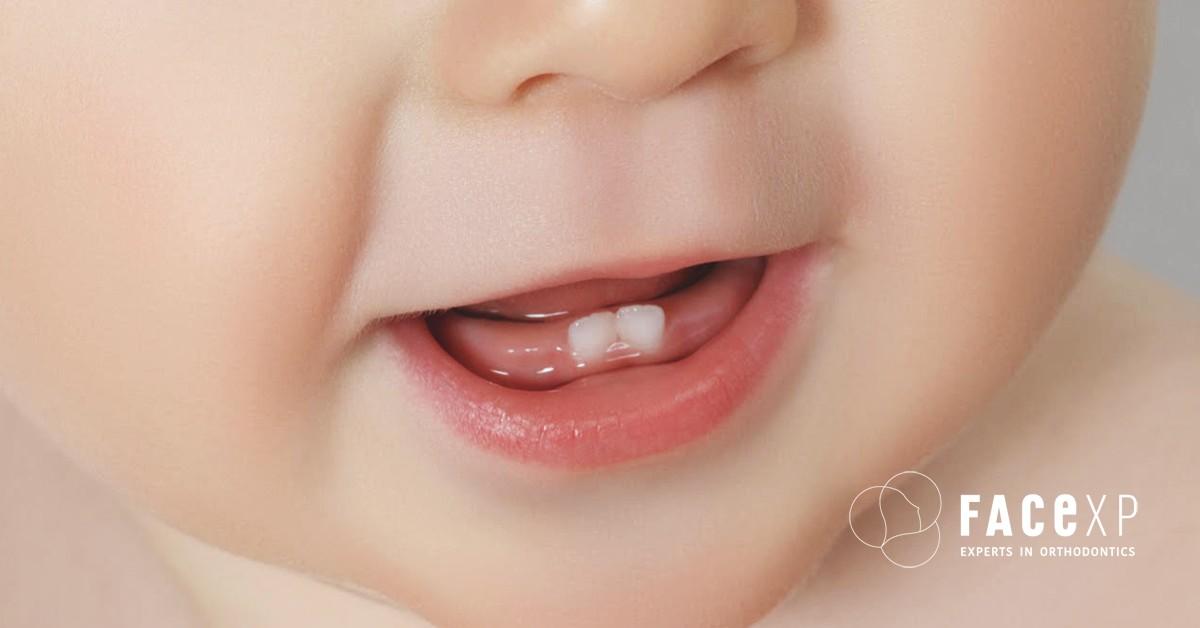 cosa fare quando spuntano i denti da latte?
