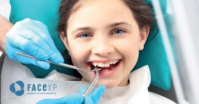 estrazione del dente
